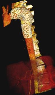 Endoprothese Aorta Thoracalis