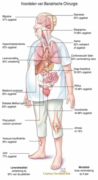 Abdominal Obesity and Health Risk